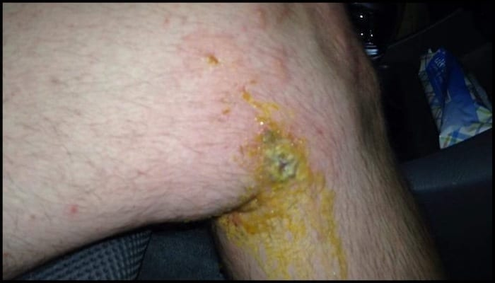 David Ashton's Knee That Was Stabbed With a Poision Oak Branch While Hiking | AdventureHacks