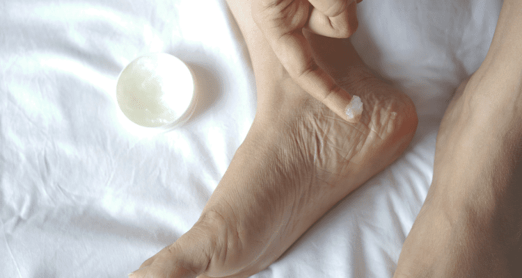 Woman adding petroleum jelly to her feet before a hike to prevent blisters